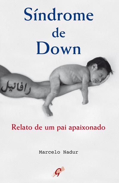 Síndrome de Down - Relato de um pai apaixonado